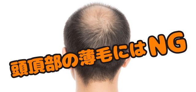 頭頂部の薄毛にはNG