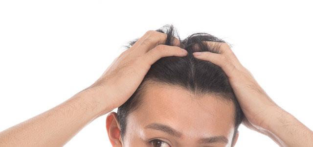 育毛・発毛効果に期待できるのはフィンジア イメージ