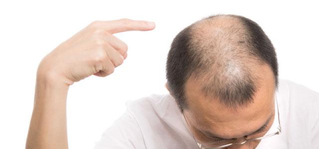 重度に薄毛が進行している人 イメージ