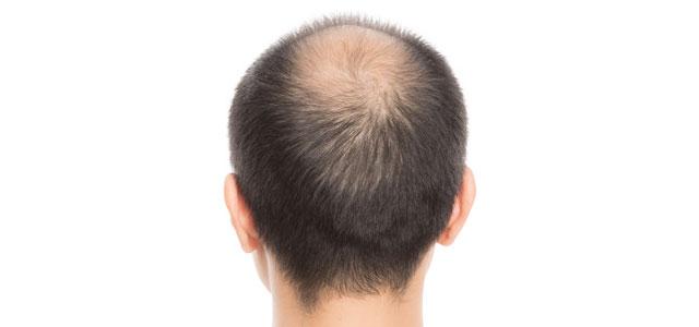 頭頂部の薄毛を治したい人 イメージ